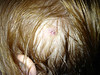 Aidan's Head Wound 07/2013 :
